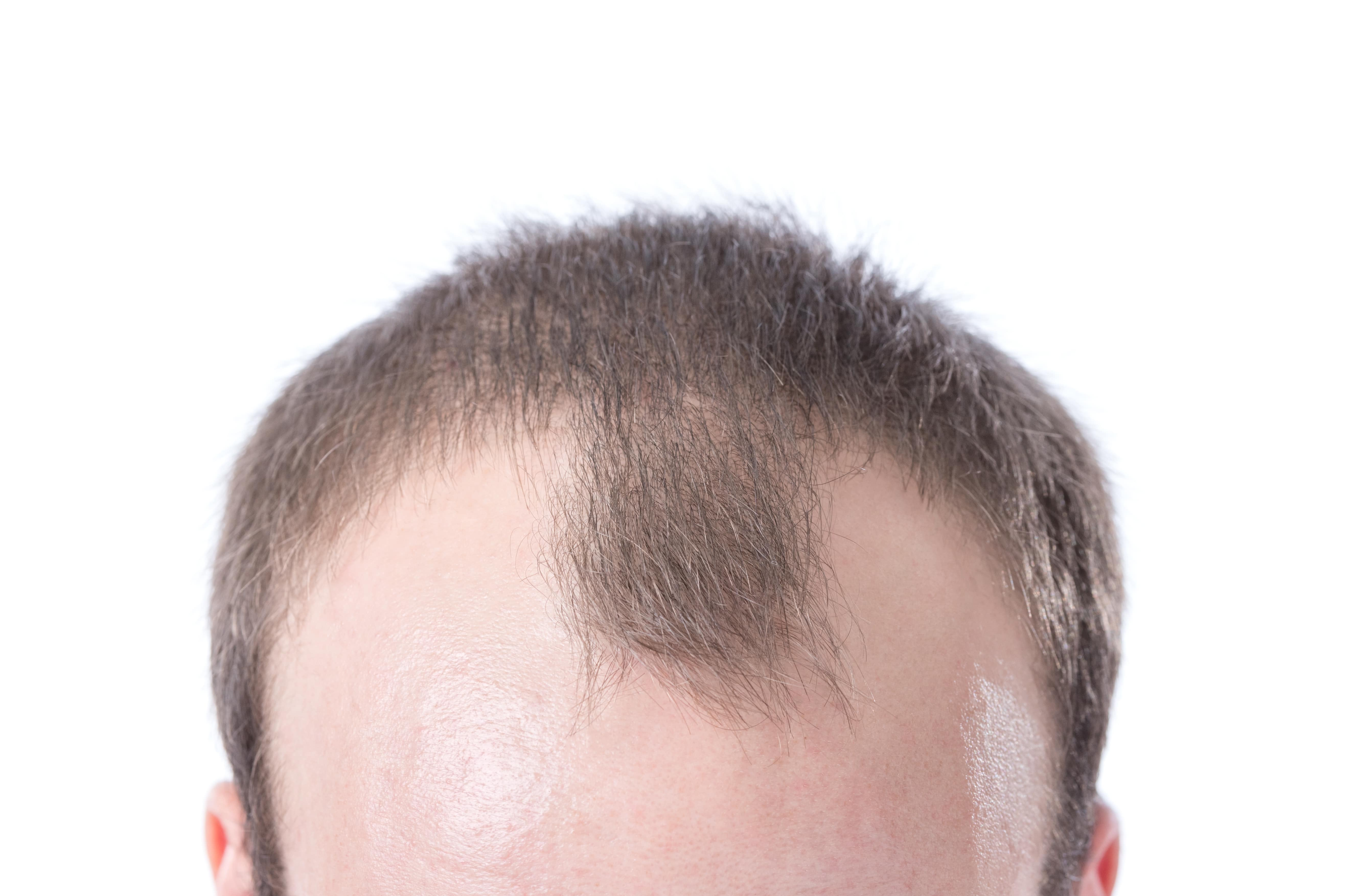 Saçlar Nasıl Daha Gür Çıkar Çözümü Nedir